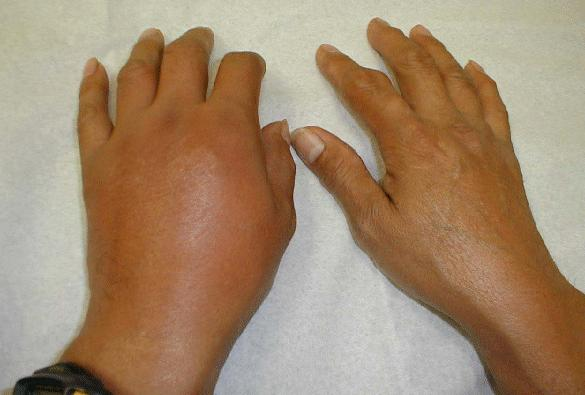 how to naturally get rid of gout how to reduce swelling in foot gout gout ankle radiology